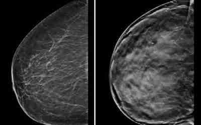 MEMO Noodzaak MRI-onderzoek in screening borstkanker bij zeer dicht borstweefsel